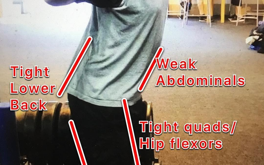Is Anterior Pelvic Tilt causing your knee or back pain