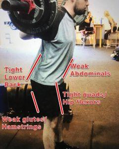Causes of Anterior Pelvic Tilt (APT)