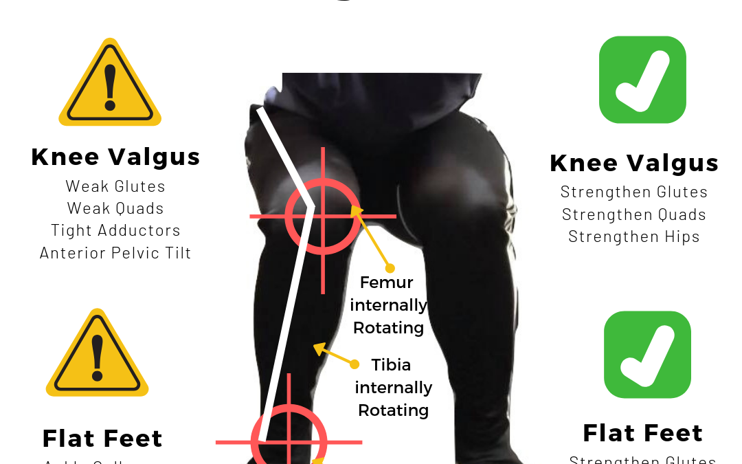 Knee Valgus/Flat Feet Destroying Your Knees